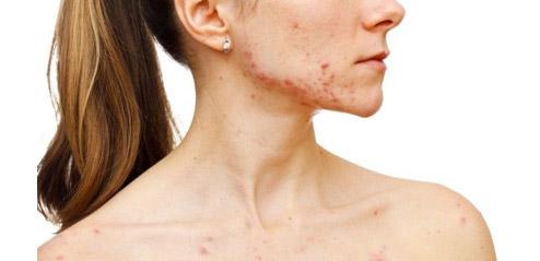 vitamina c - beneficii piele